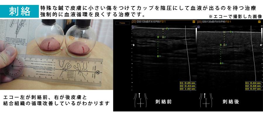 三重県 鍼 治療  徒手療法