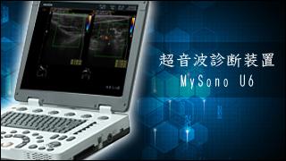 超音波診断装置「MySono U6」